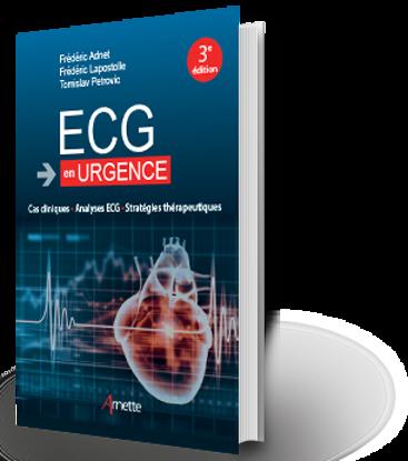 Image de ECG en urgence Cas clinique - Analyse ECG - Stratégie thérapeutique