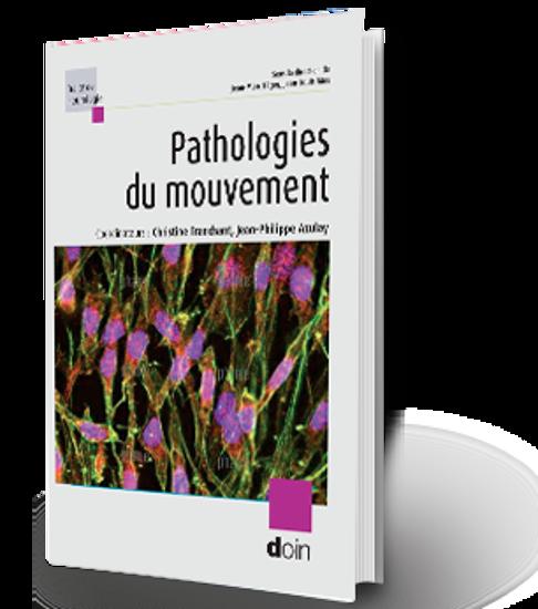 Image sur Pathologies du mouvement